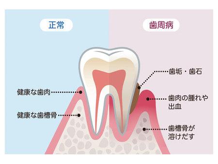 正常な歯と歯周病になっている歯の違い