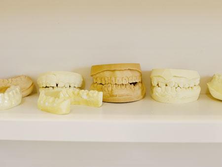 模型の歯型